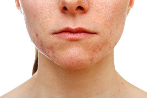 Microneedling pour le traitement des cicatrices d'acné